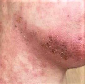 Geïrriteerde huid jeuk