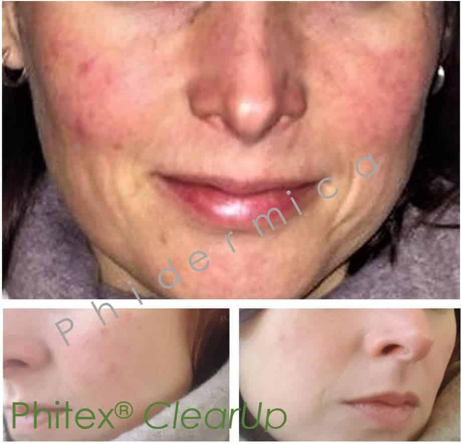 Rosacea 1 week behandeling met Phitex ClearUp