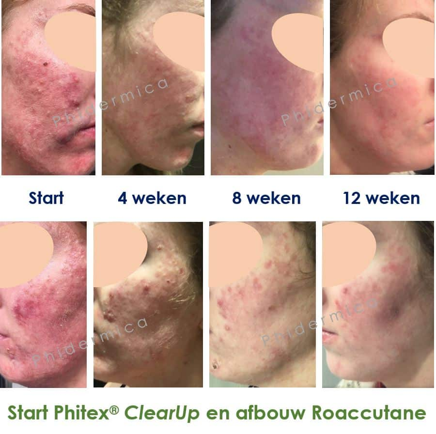 Roaccutane vs Phitex ClearUp
