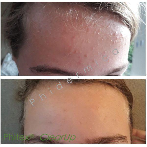 puistjes voorhoofd, Phitex acne voorhoofd