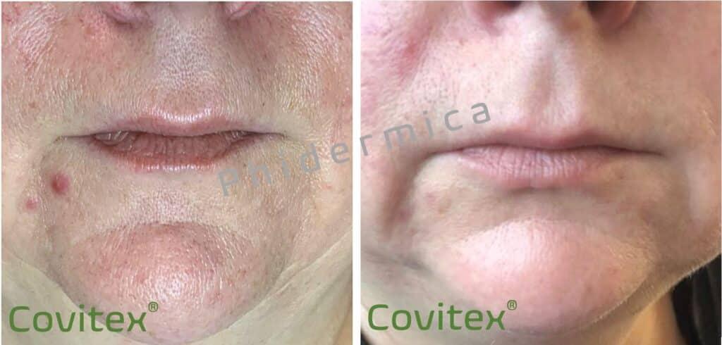 maskne mascne Covitex huidirritatie mondkapje mondkapjes